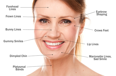 what botox can be used for