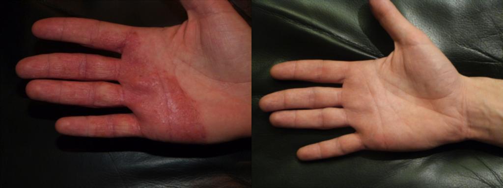 Dermalux-dermatitis