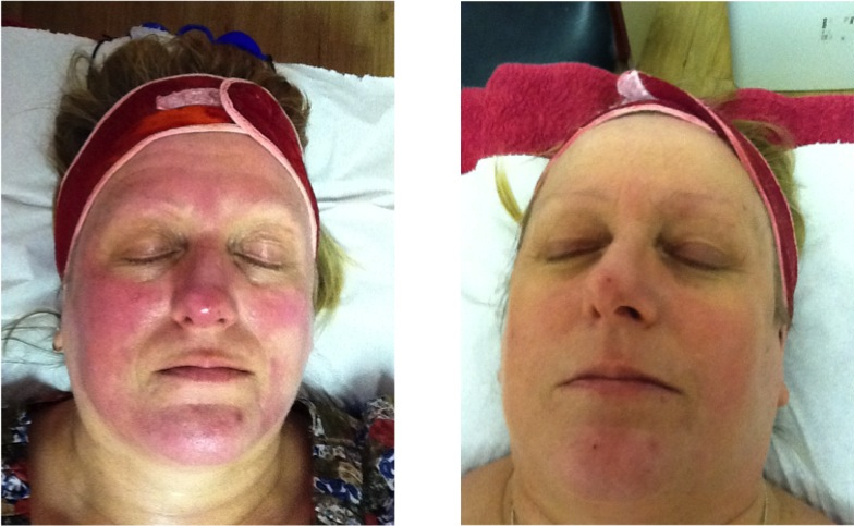 Dermalux Led Light Therapy Manchester Diane Nivern Clinic
