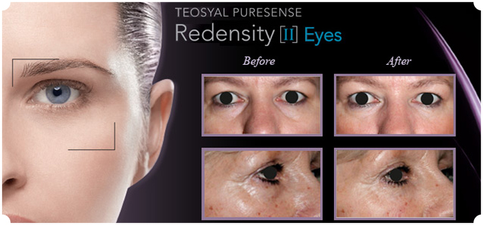 Teosyal-Redensity 11- tear-troughs
